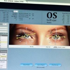 Consulta ocular