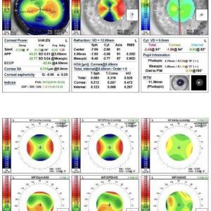 Consulta oftalmologista sp