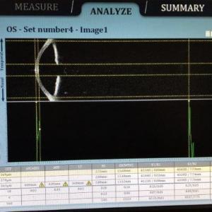 Exame de fundoscopia