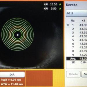 Exame topografia de córnea